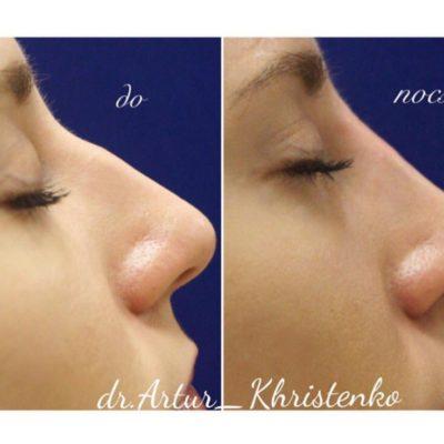 Коррекция формы носа филлером 63