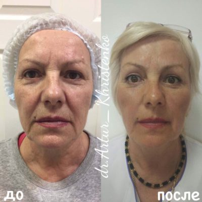 Подтяжка лица без операции 12