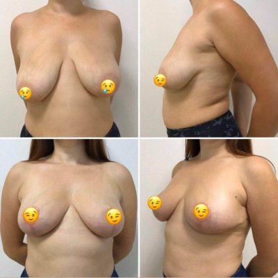 Мастопексия (подтяжка груди) 9