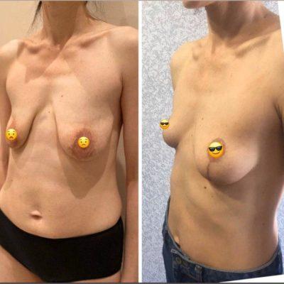 Подтяжка груди без имплантов: мастопексия 11
