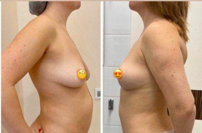 Подтяжка груди без имплантов: мастопексия 13