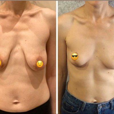Подтяжка груди без имплантов: мастопексия 12