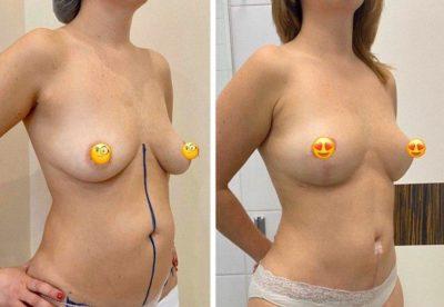 Подтяжка груди без имплантов: мастопексия 14