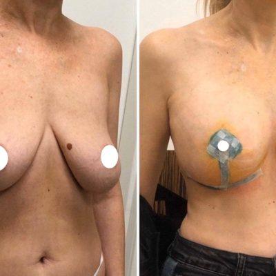 Подтяжка груди без имплантов: мастопексия 18