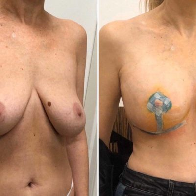 Мастопексия (подтяжка груди) 10