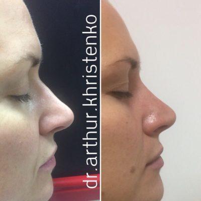 Коррекция формы носа филлером 64