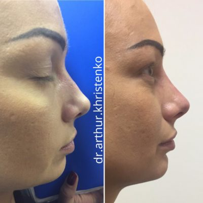 Коррекция формы носа филлером 66