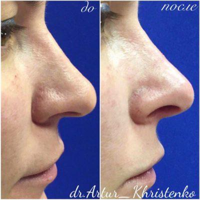 Коррекция формы носа филлером 67