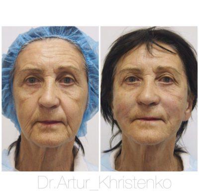 Подтяжка лица без операции 10