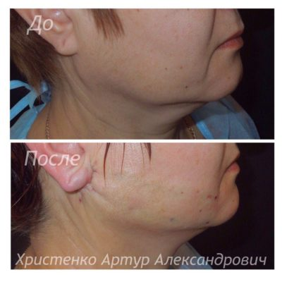 Подтяжка лица без операции 4