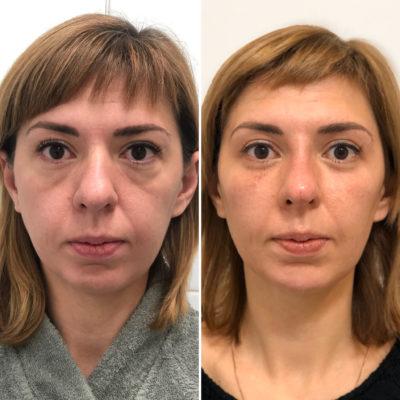 Объемное моделирование лица 95