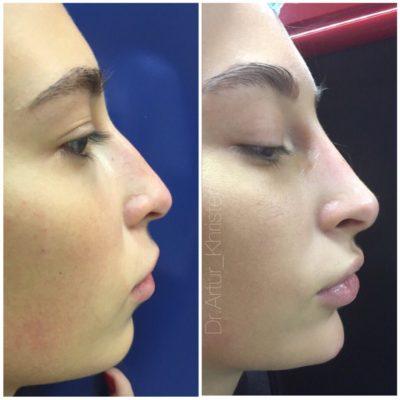 Коррекция формы носа филлером 68