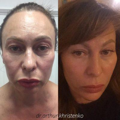 Подтяжка лица без операции 3