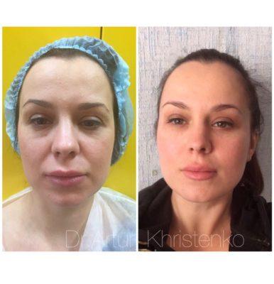 Подтяжка лица без операции 2