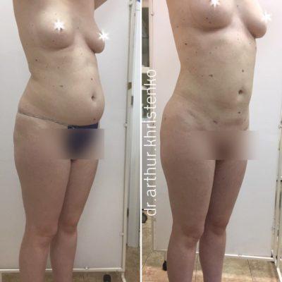 Body Tite 1