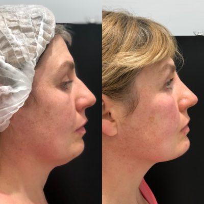 Ринопластика горбинки носа 3