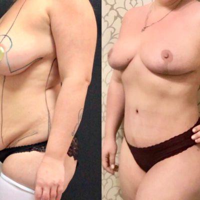 Липосакция груди: уменьшение бюста за одну процедуру 1