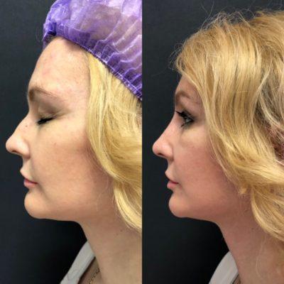Ринопластика горбинки носа 2