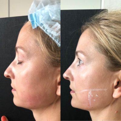Ринопластика горбинки носа 1