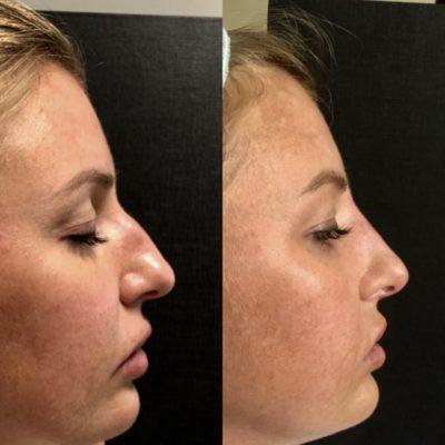 Ринопластика горбинки носа 0