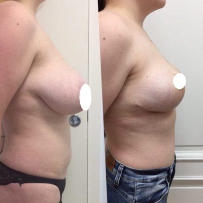 Пластика по уменьшению груди с идеальным результатом 3