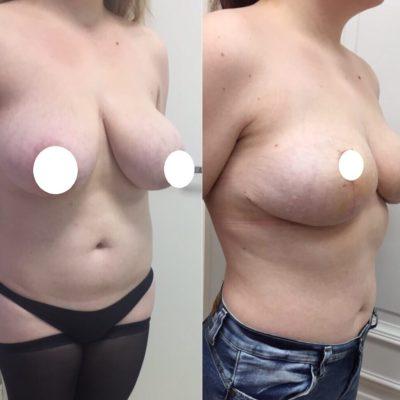 Пластика по уменьшению груди с идеальным результатом 2