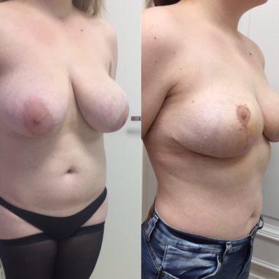 Липосакция груди: уменьшение бюста за одну процедуру 3