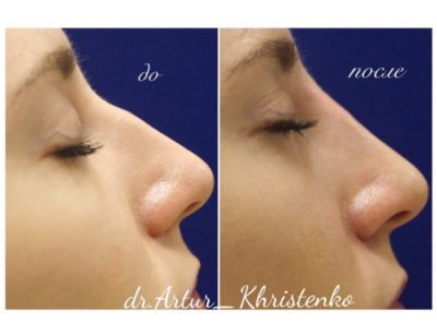 Ринопластика горбинки носа 5