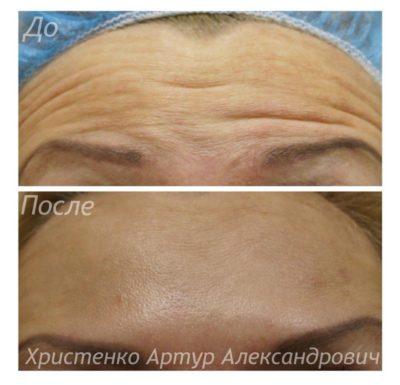 Инъекционные процедуры для лица 14