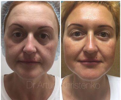 Подтяжка лица без операции 26