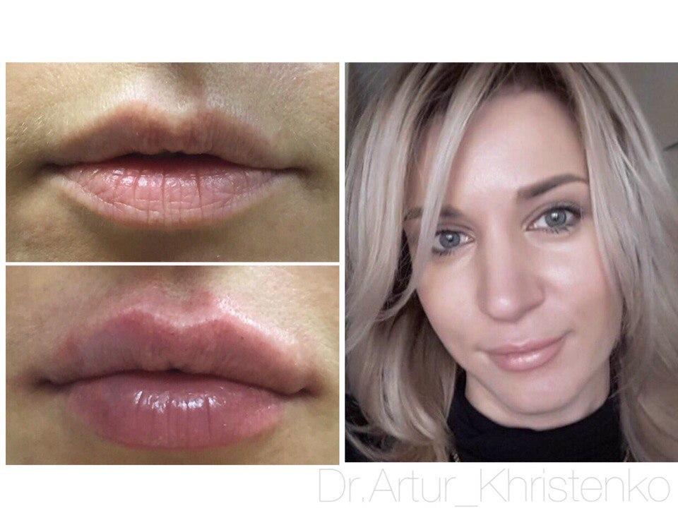 Коррекция формы и объема губ
