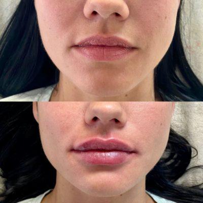 Увеличение губ филлером 65