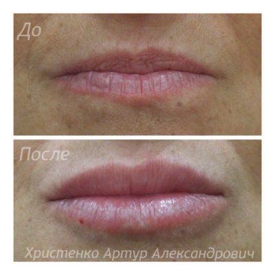 Увеличение губ филлером 1