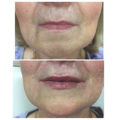 Увеличение губ филлером 4