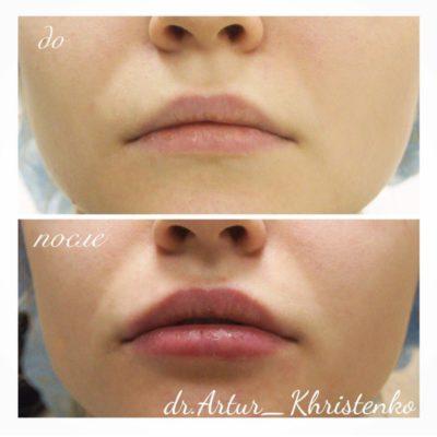 Увеличение губ филлером 5