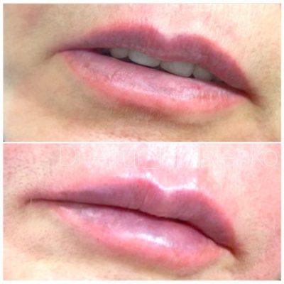 Увеличение губ филлером 7