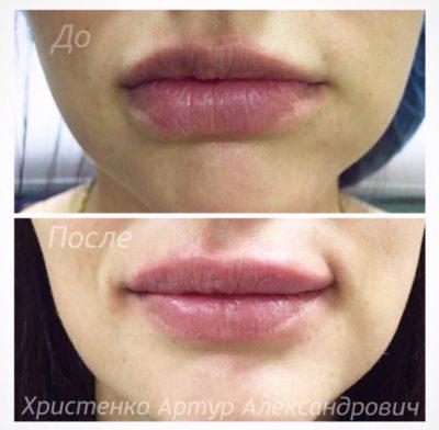 Увеличение губ филлером 8