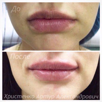 Увеличение губ филлером: естественный результат по доступной цене 8