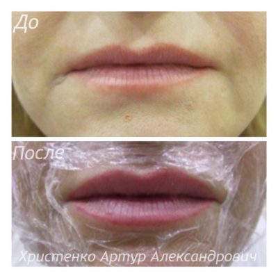 Увеличение губ филлером 10