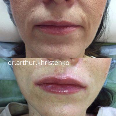 Увеличение губ филлером 11