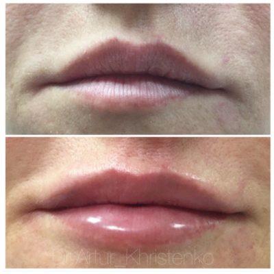 Увеличение губ филлером 12
