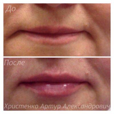 Увеличение губ филлером 13
