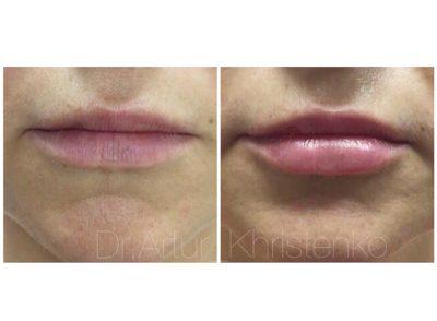 Увеличение губ филлером 14