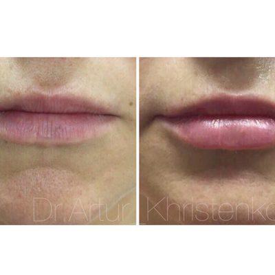 Увеличение губ филлером: естественный результат по доступной цене 14