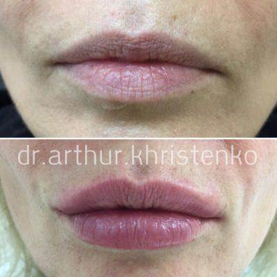 Увеличение губ филлером 15