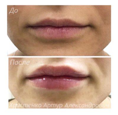 Увеличение губ собственным жиром 5