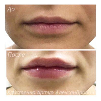 Увеличение губ филлером: естественный результат по доступной цене 16