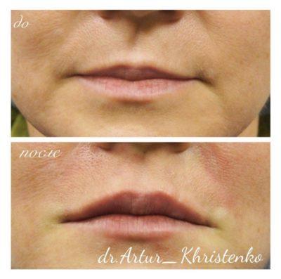 Увеличение губ филлером 17