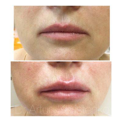 Увеличение губ филлером 18