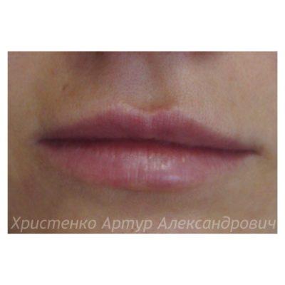 Увеличение губ филлером 19